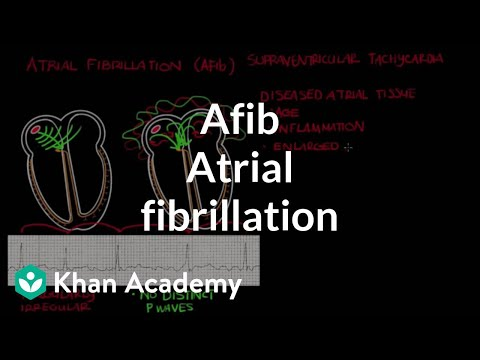 Atrial fibrillation (Afib) | Circulatory System and Disease | NCLEX-RN | Khan Academy