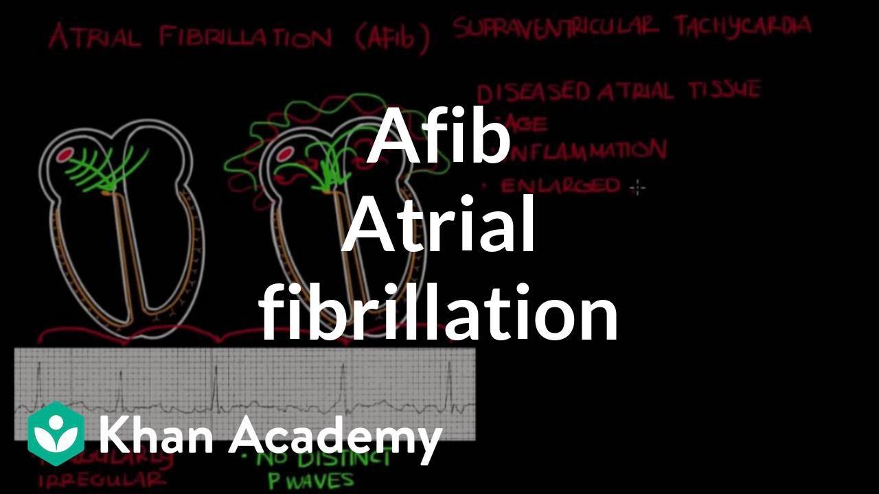 Atrial fibrillation (Afib) (video) | Khan Academy
