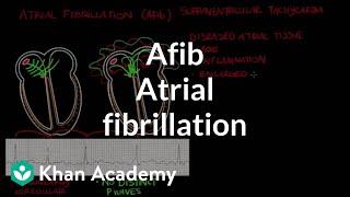 Video Atrial fibrillation (Afib) | Circulatory System and Disease | NCLEX-RN | Khan Academy download MP3, 3GP, MP4, WEBM, AVI, FLV November 2017