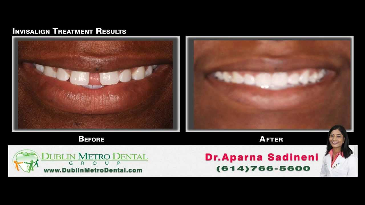 Kristina Invisalign Before & After Treatment Results ...