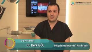 Dikişsiz implant nedir? Nasıl yapılır?