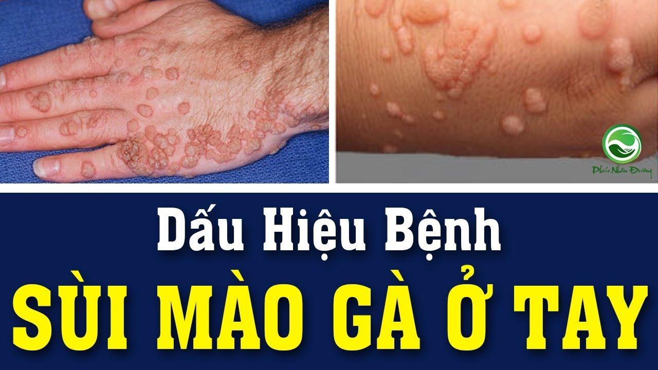 Dấu hiệu bệnh sùi mào gà ở tay   Sùi mào gà ở tay và cách điều trị