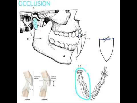 Occlusion Part  2