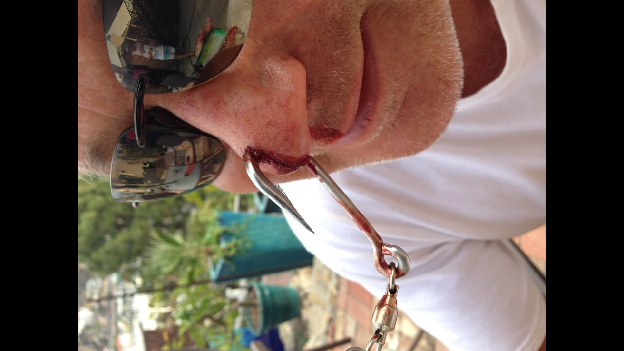 Ndmk catalina island fishing accident youtube for Fishing hook accidents