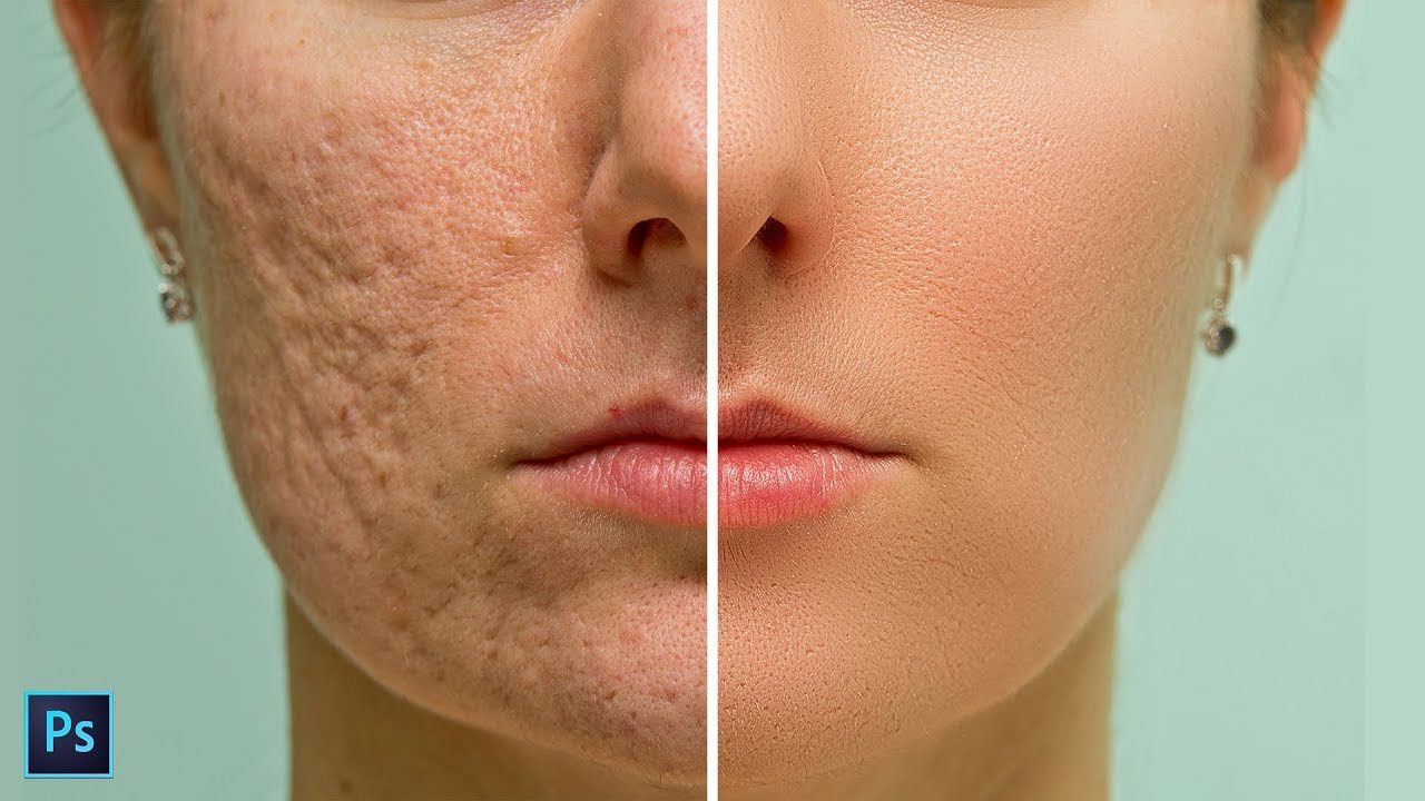 High End Skin Softening In Photoshop Remove Blemishes