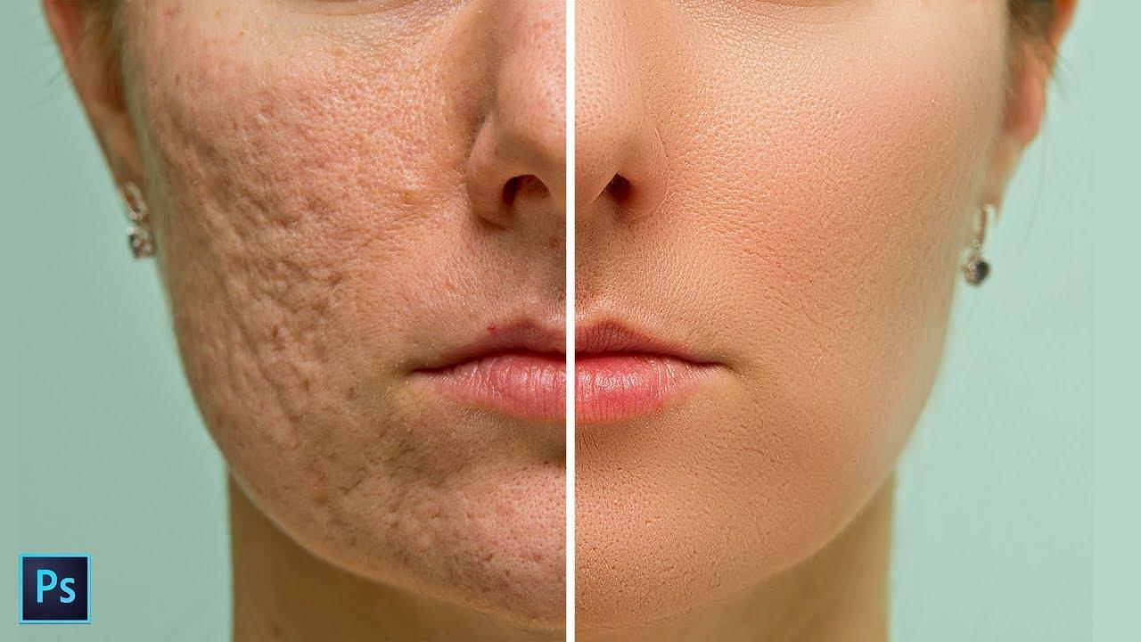 skin softening tips