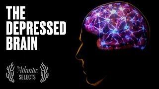 Ihr Gehirn bei Depression: Neurowissenschaften, Animierte