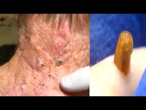 Выдавливание ЧЁРНЫХ ТОЧЕК ! Удаление Черных точек / Чистка лица / Прыщи / Pimple Pooping Compilation
