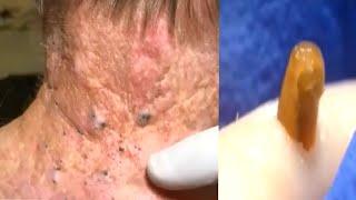 Выдавливание ЧЁРНЫХ ТОЧЕК Удаление Черных точек Чистка лица Прыщи Pimple Pooping Compilation