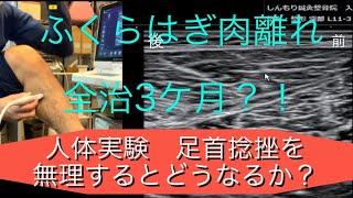【人体実験②】ふくらはぎ肉離れ超音波エコー 大きさ