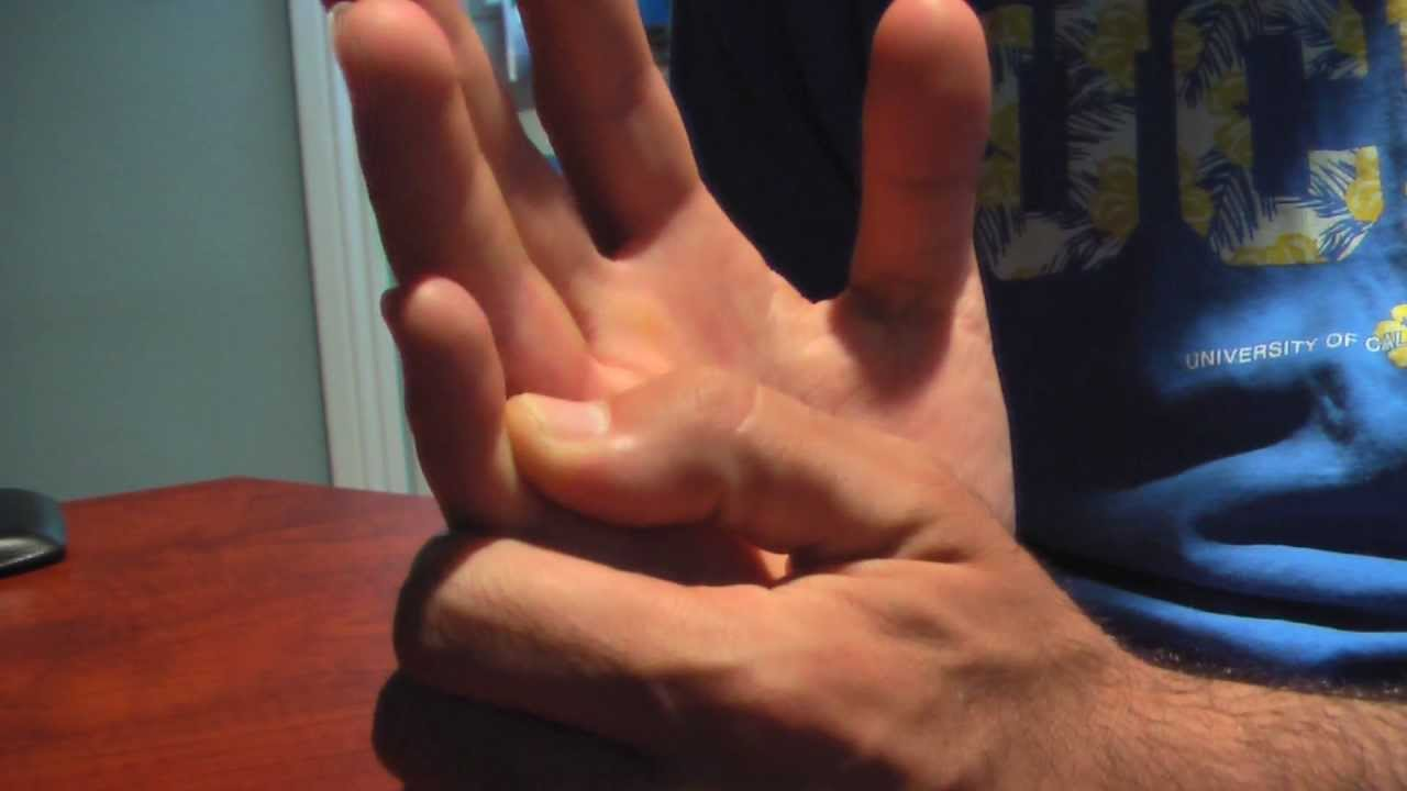 jammed and broken pinky finger - YouTube