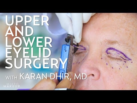 Upper And Lower Eyelid Surgery (Blepharoplasty) For Seth | PLASTIC With Dr. Dhir