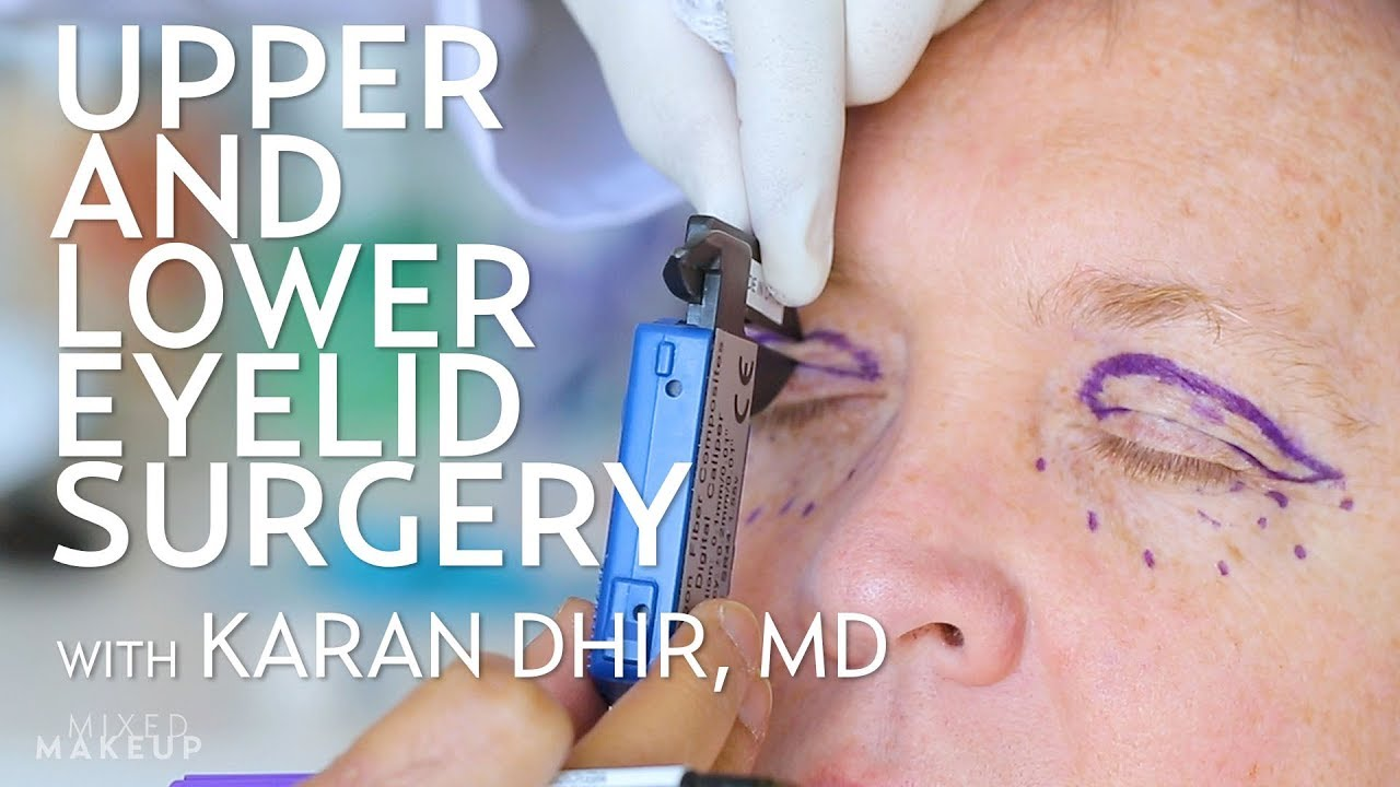 Upper and Lower Eyelid Surgery (Blepharoplasty) for Seth | PLASTIC with Dr   Dhir