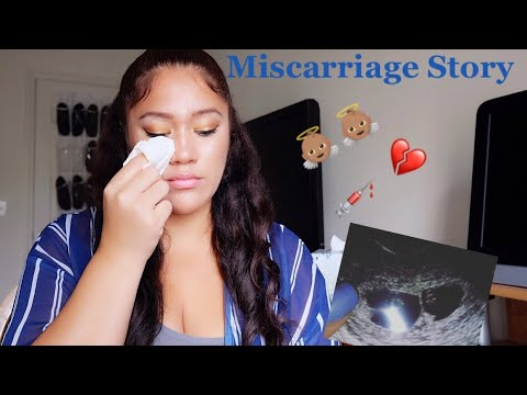 My Missed Miscarriage Story Chemical Pregancy Twins Rh Negative