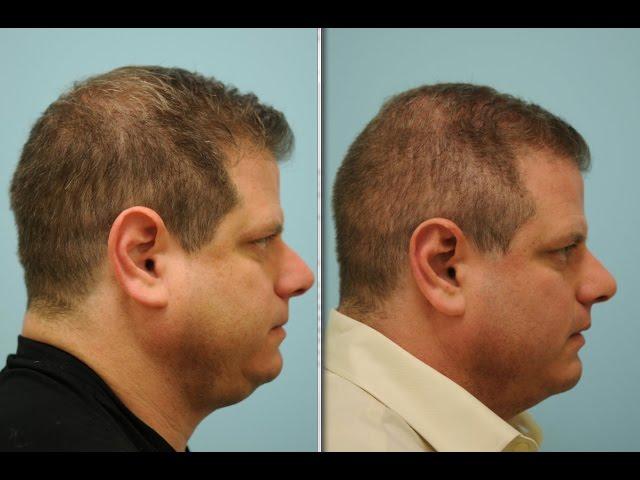 Rhinoplasty-Otoplasty-Chin Implant-Neck Lipo-FUE Hair Transplant Testimonial in Dallas