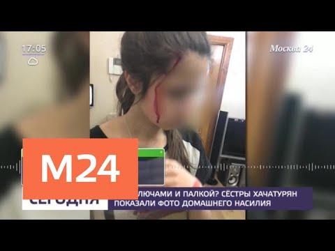 Сестры Хачатурян показали фото домашнего насилия - Москва 24