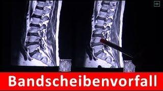 Bandscheibenvorfall in MRT Aufnahme by RadiologieTV