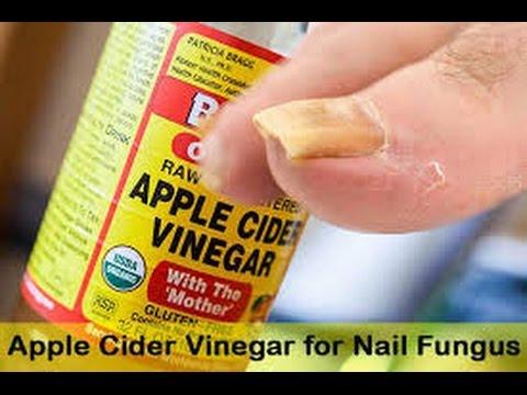 Toenail Fungus Vinegar