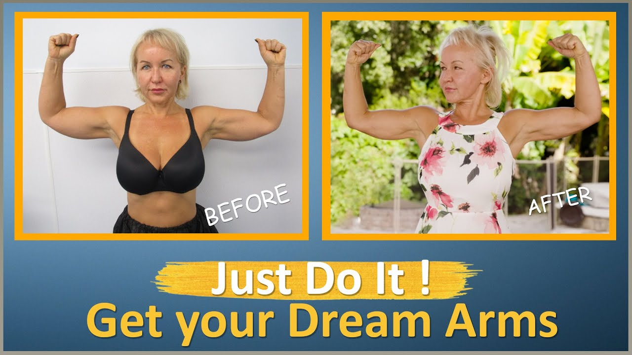 RUSSIAN |Arm Liposuction 1 Year Follow Up | Lipo 360° Arms | Celebrity Arms™| Artlipo | Expert Dr.Su