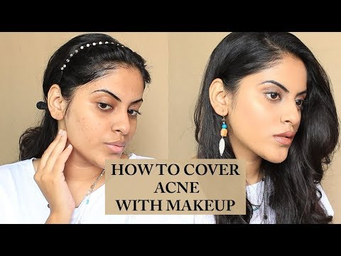 HOW TO COVER ACNE WITH MAKEUP | SROACHBEAUTY thumbnail