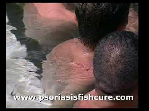 Introducing Psoriasis Treatment Fishy Spa Turkey - The Motherland of Doctor Fish