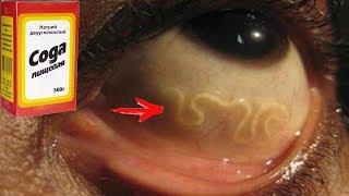 ★ 3 этапа очищения кишечника СОДОЙ от паразитов по методу НЕУМЫВАКИНА. Клизма от гельминтов. Глисты