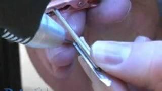 Orion Dental Welders - Welding Properties of Different Metals