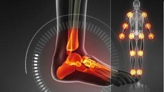 Как вылечить шишки на ногах МНЕНИЕ ЭКСПЕРТА!(, 2014-06-25T05:56:08.000Z)