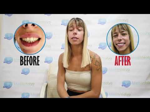 Dental Treatment Turkey | Tratamento Dentário Turquia