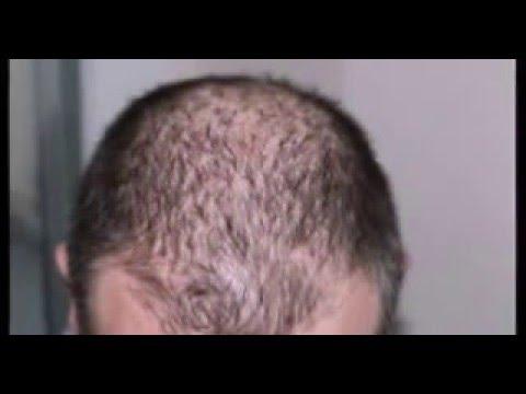 Aloe vera para el cabello con caspa