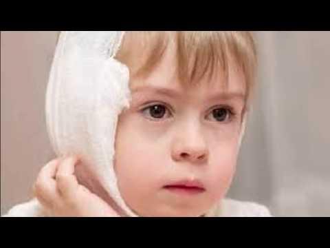 Болит ухо после ангины