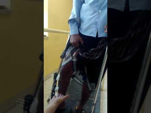 MSF clinic Amman bone lengthening