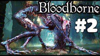 Bloodborne (Dịch thuật) - Game gì mà tởm thế này?! #2