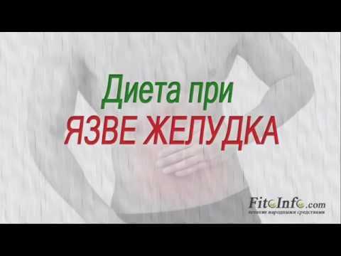 Язва желудка и двенадцатиперстной кишки - язвенная болезнь