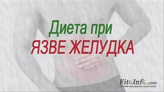 видео Стол 1 - правила диеты при язве желудка