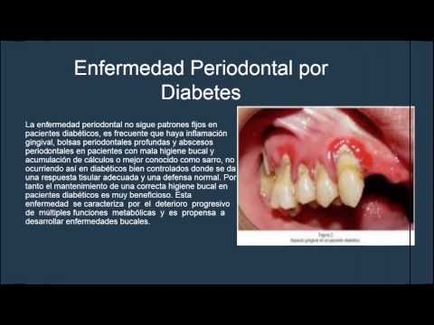 presentacion-diabetes-mellitus-en-odontologia