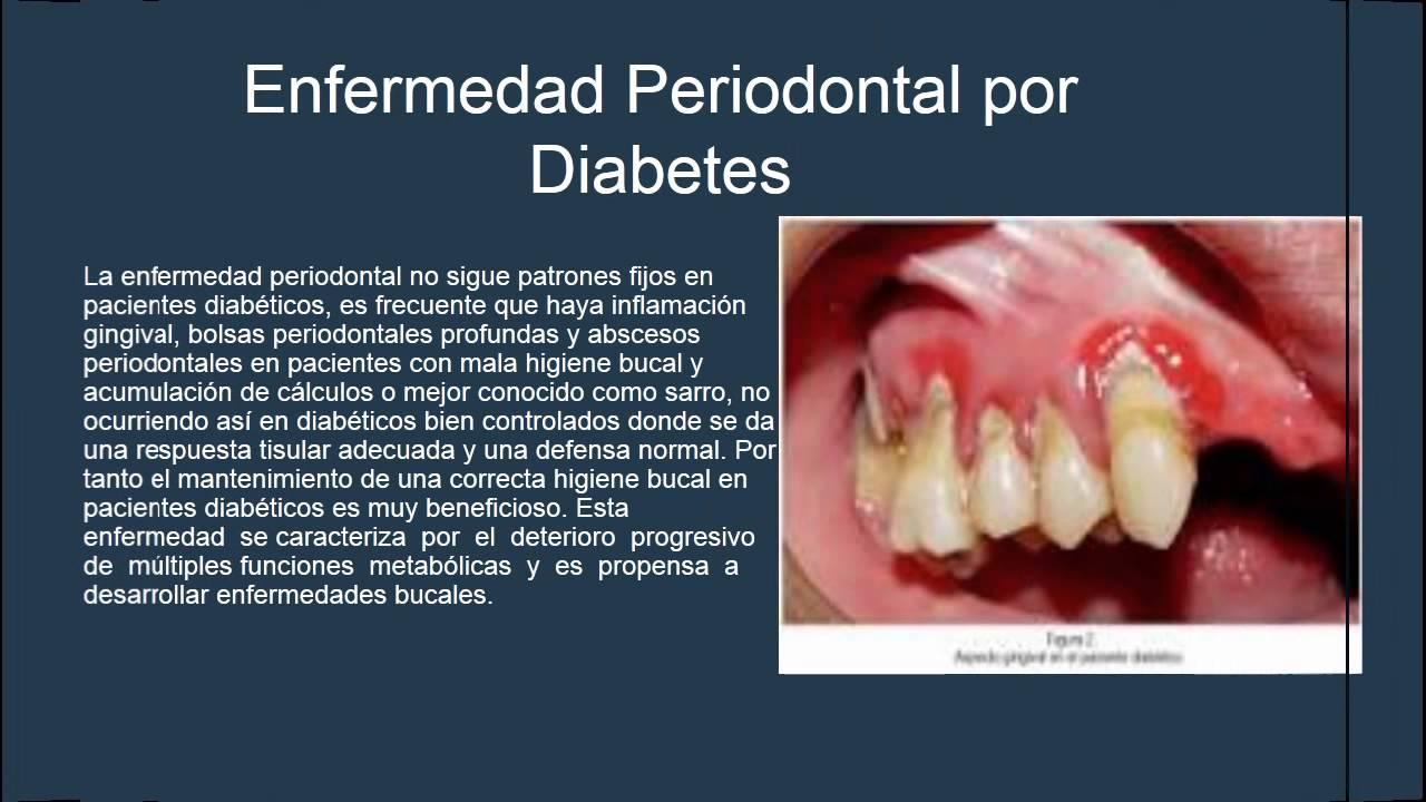 Presentacion Diabetes Mellitus en Odontologia - YouTube