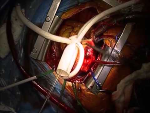 Valve-Sparing Aortic Root, Ascending Aorta, and Aortic Arch Replacement