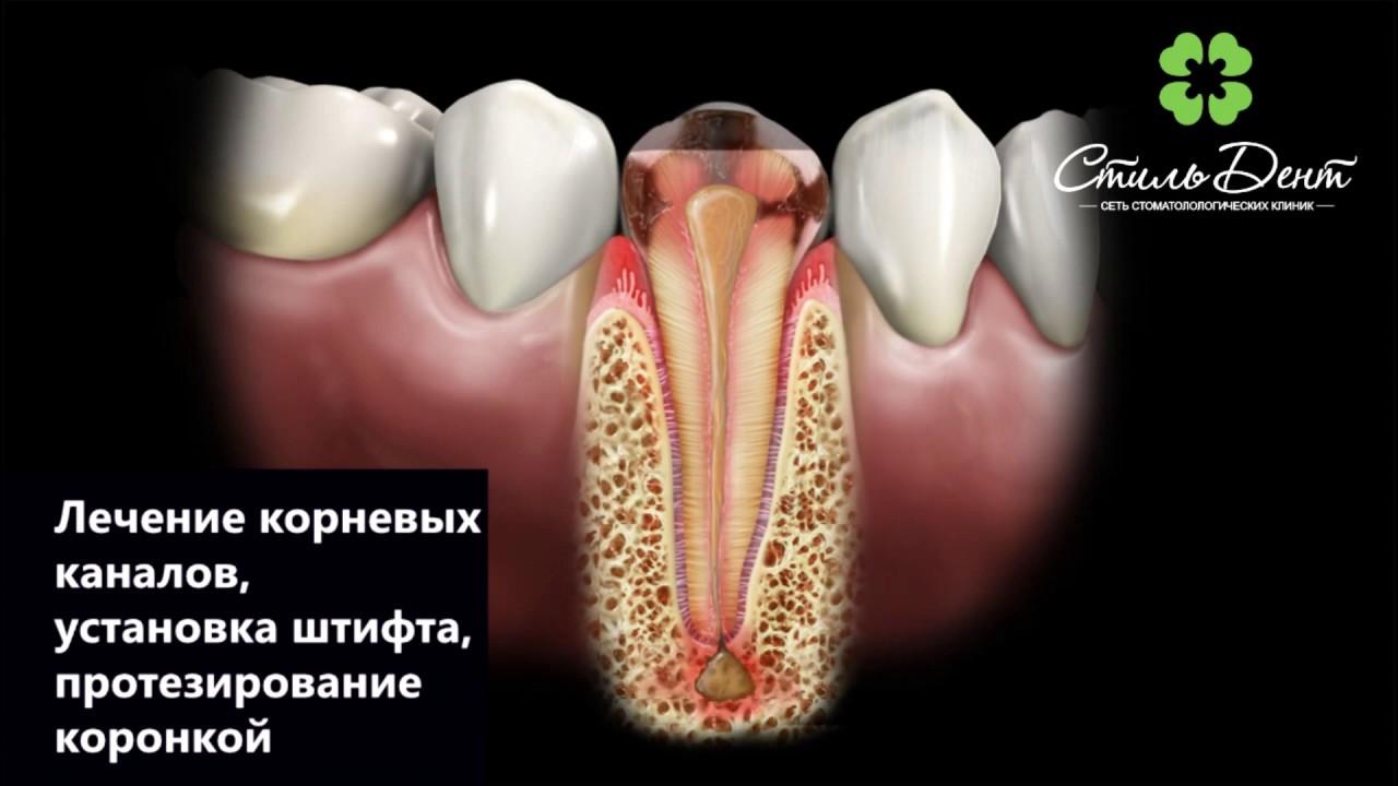 Лечение каналов с последующим протезированием