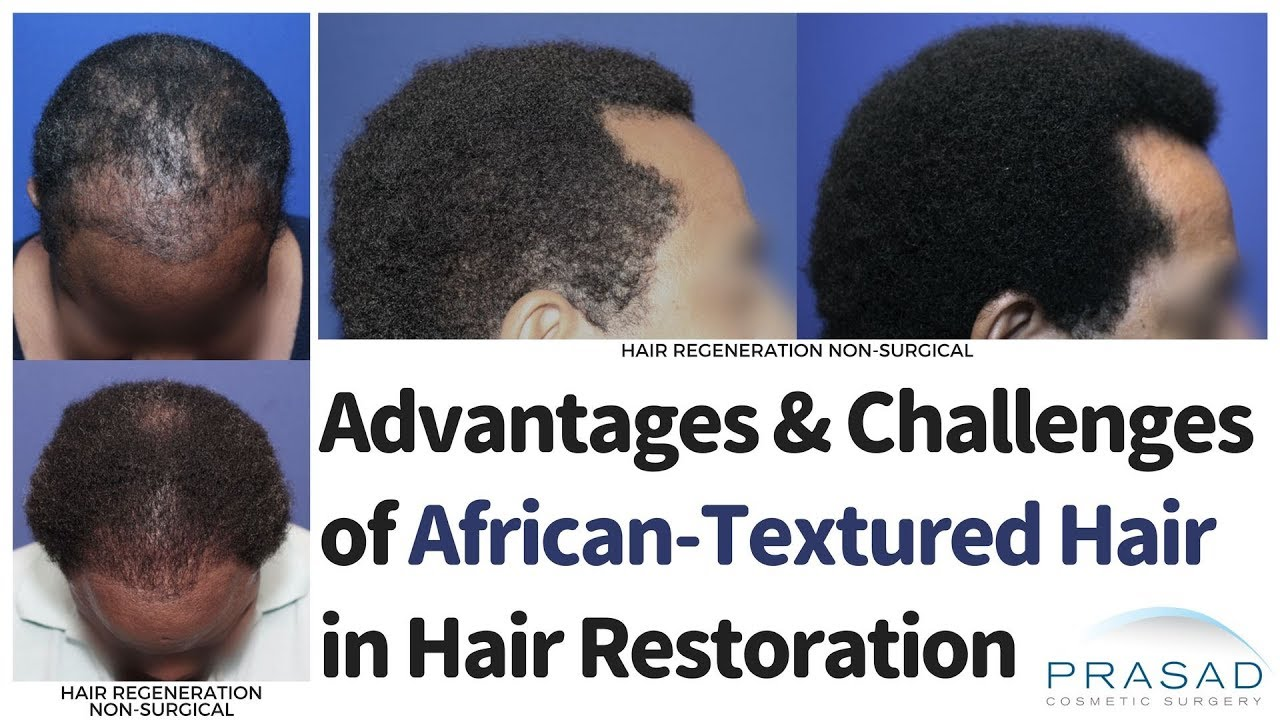 Download How Hair Transplant and Non-Surgical Hair Restoration are Done with African Hair
