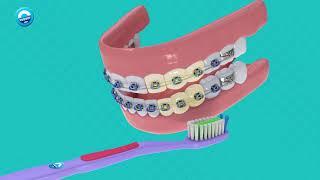 Orthodontic | Cuidados com o Aparelho Dental