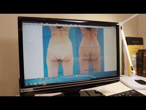 ดูดไขมัน bodytite liposuction รัตตินันท์คลินิก