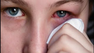 How To Remove Protein Build Up From Contact Lenses