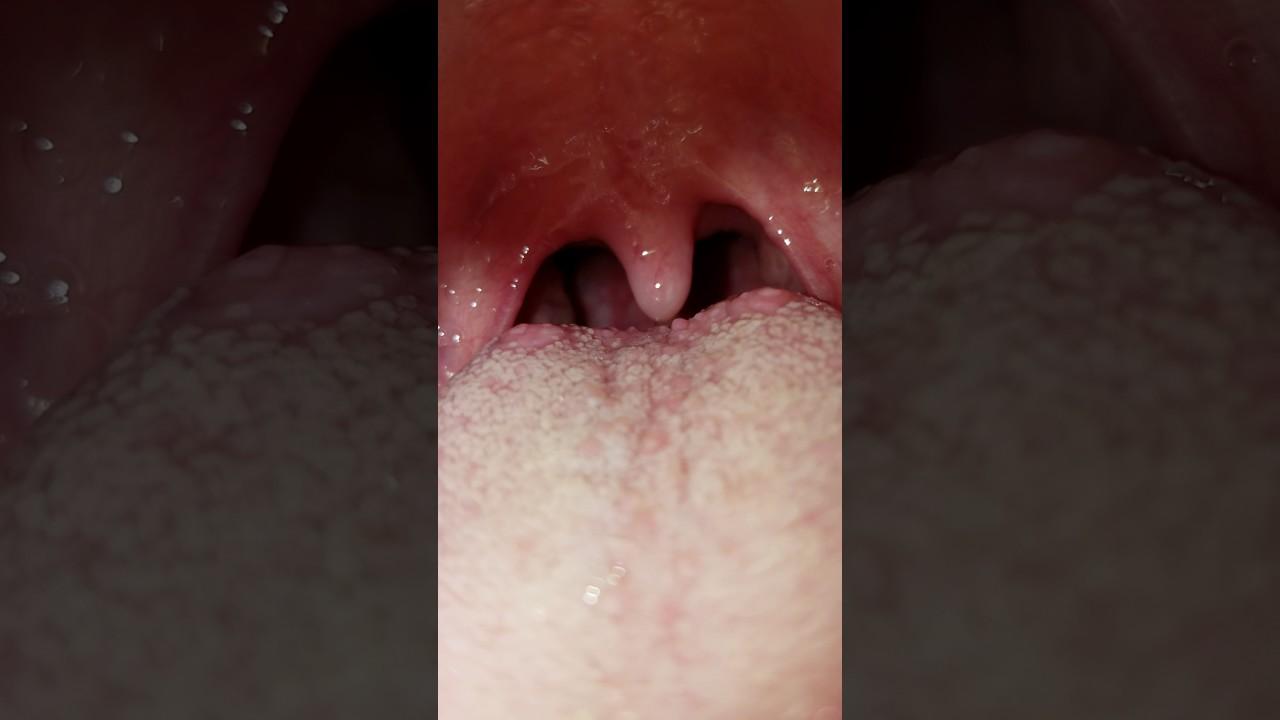 Normal throat? - YouTube  Normal throat? ...
