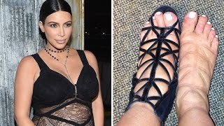 Kim Kardashian's Swollen Pregnancy Feet Return - Poor Kim!