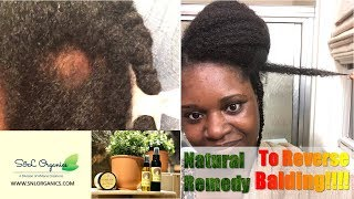 Regrow Edges and Bald Spots from Alopecia