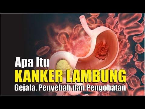 Penyakit Kanker Tenggorokan - Gejala, Penyebab, Pengobatan ...