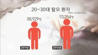 20-30대 탈모환자 늘어…스트레스· 흡연 탓