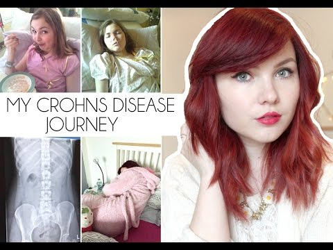 My Crohn's Disease Journey | Paige Joanna STORY TIME