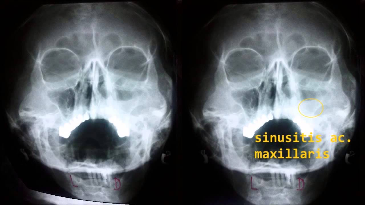 X Ray Sinuses And Nasal Bones Youtube